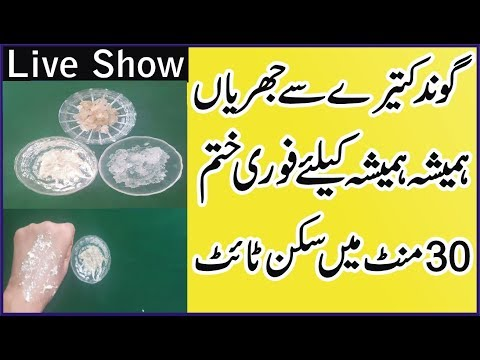 Permanent Get Rid Ur Wrinckles Just In 30 MInutes | Skin Care Tips In